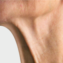 Neck Lines (Aging Neck)