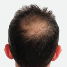 Hair Loss / Alopecia / Hair thinning