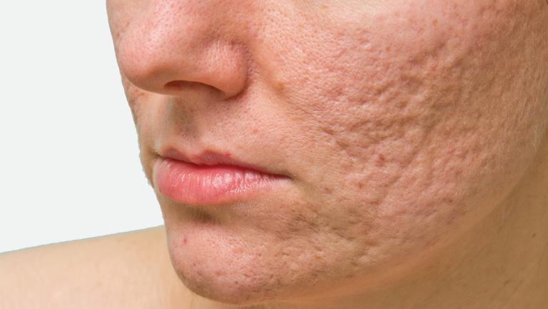 Acne Scarring – Edge Clinic