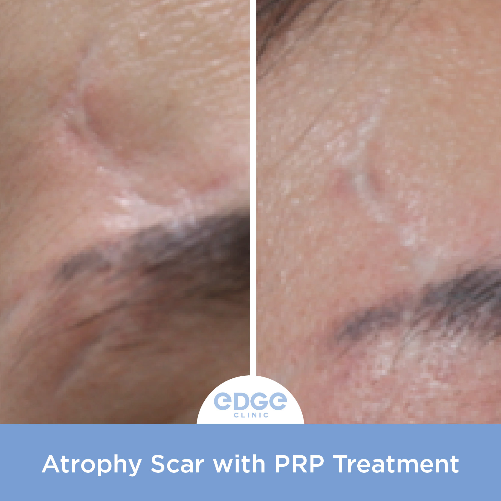 Atrophy Scar with PRP Treatment