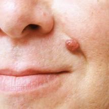 Skin Tags/Moles